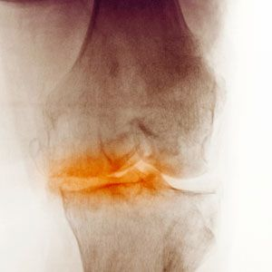 Osteoarthritis Image