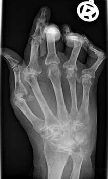 Rheumatoid-Arthritis image