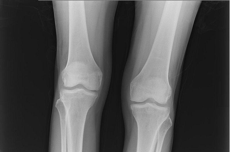 Cartilage Grafts