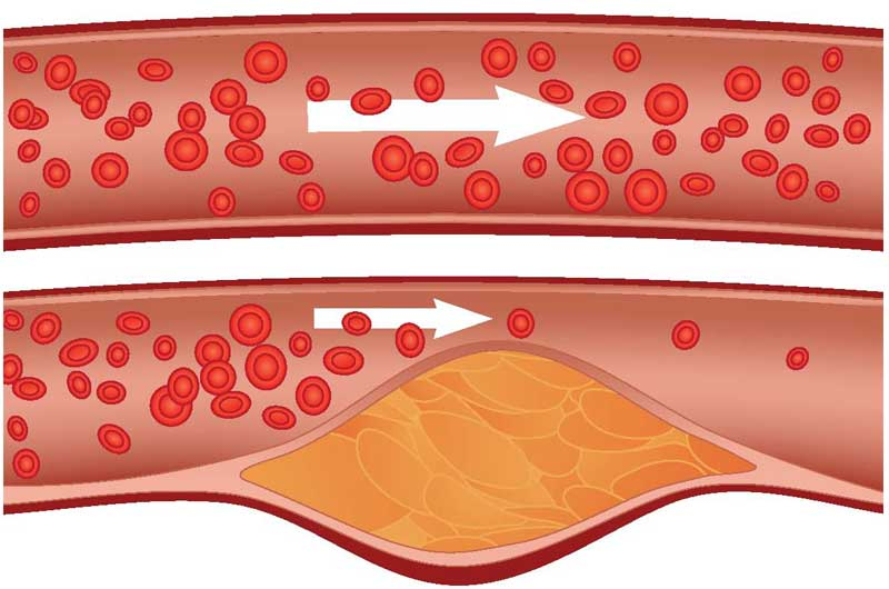 Image result for atherosclerosis
