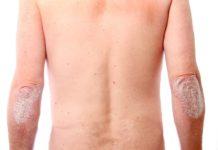 risankizumab treats psoriasis